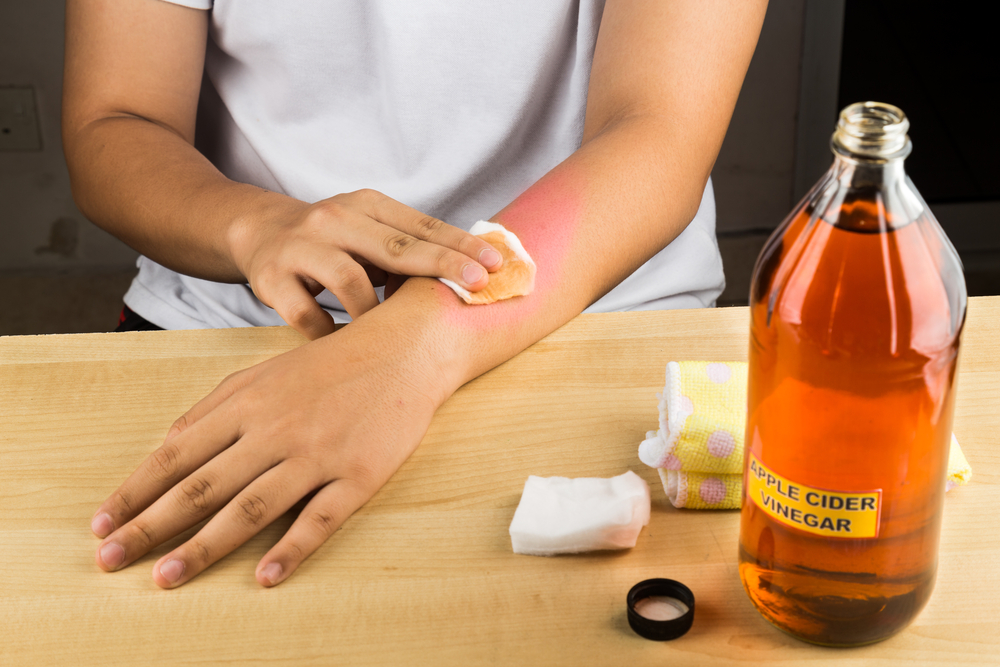 applying-apple-cider-vinegar-to-wounded-hand
