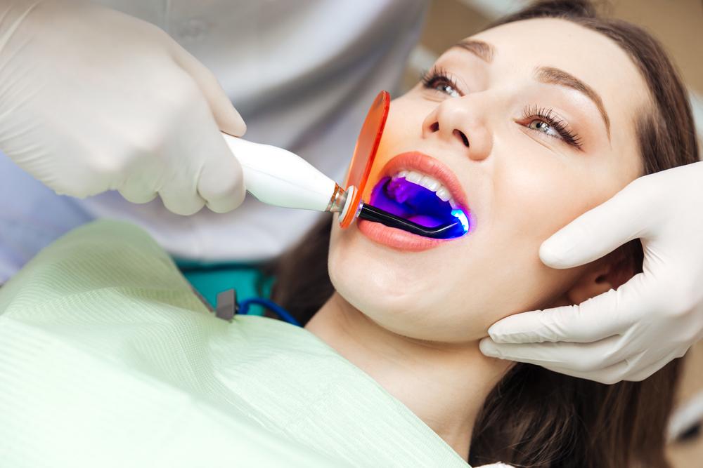 blue-lazer-teeth-whitening