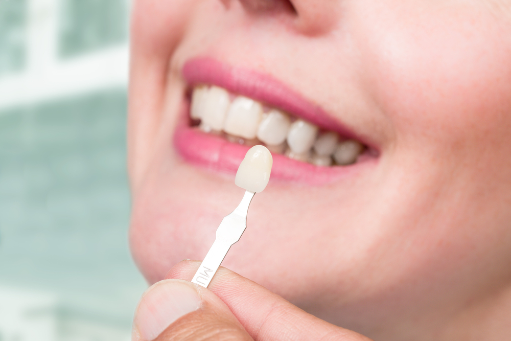 girl-doing-teeth-whitening