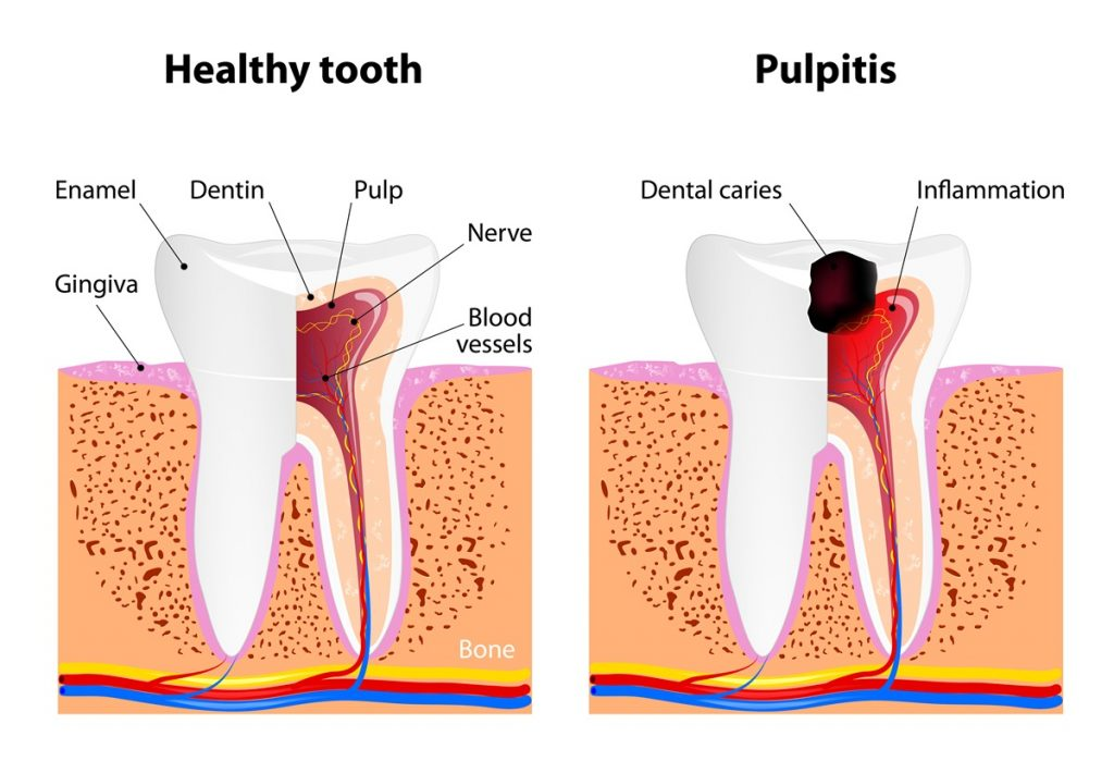 healthy-tooth-vs-pulpitis-infographic