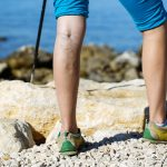 14 Natural Home Remedies to Get Rid of Varicose Veins