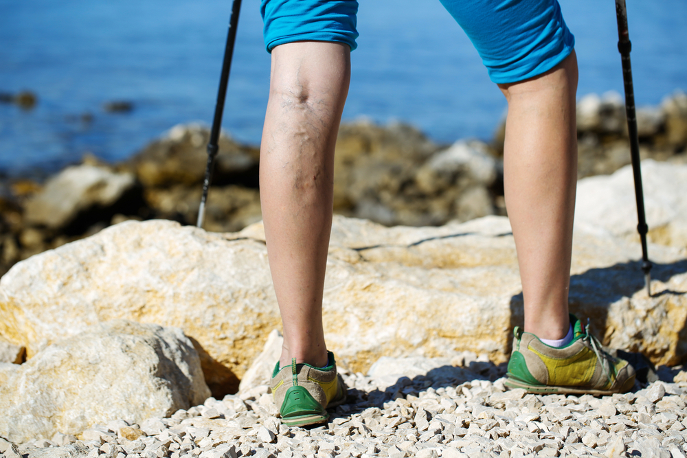 prevent-varicose-veins-today
