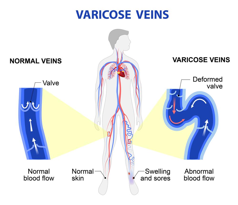 Varicose Veins In Pregnancy Natural Remedies