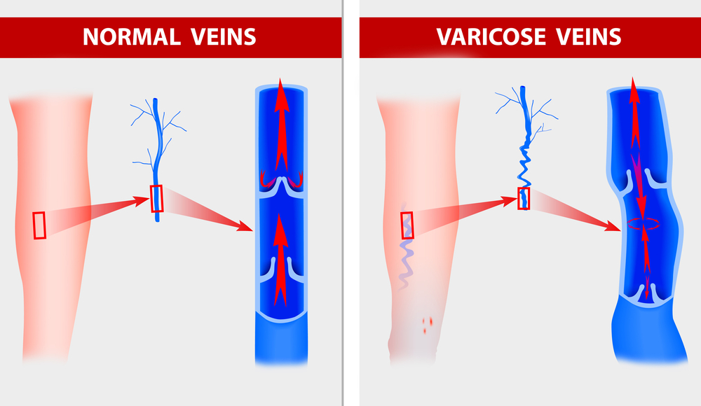 varicose-veins-the-illustration-shows-how-a-varicose-vein-forms-in-a-leg