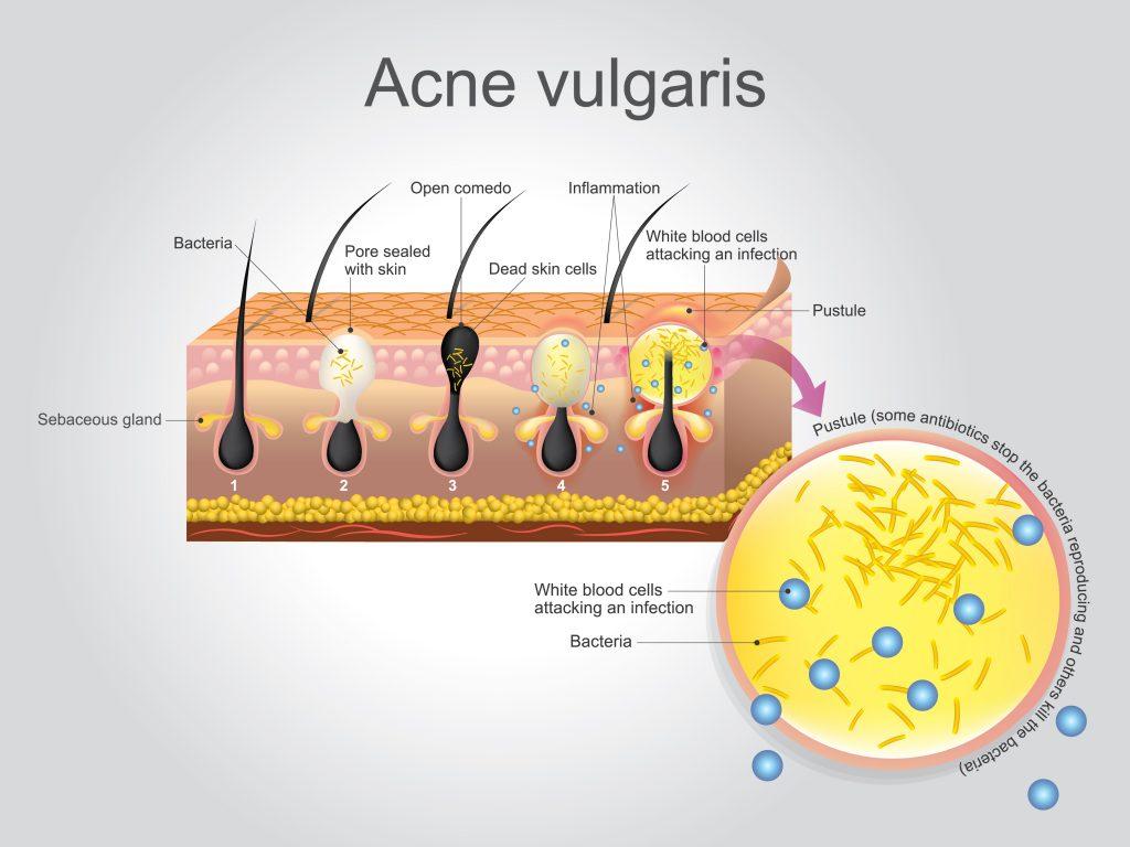 acne-vulgaris-infographic