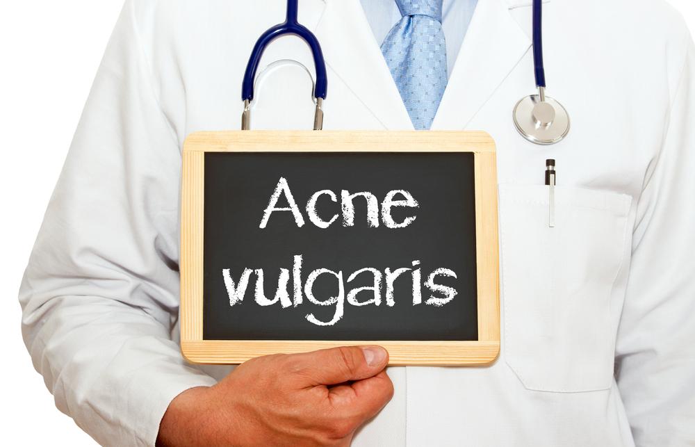 acne-vulgaris