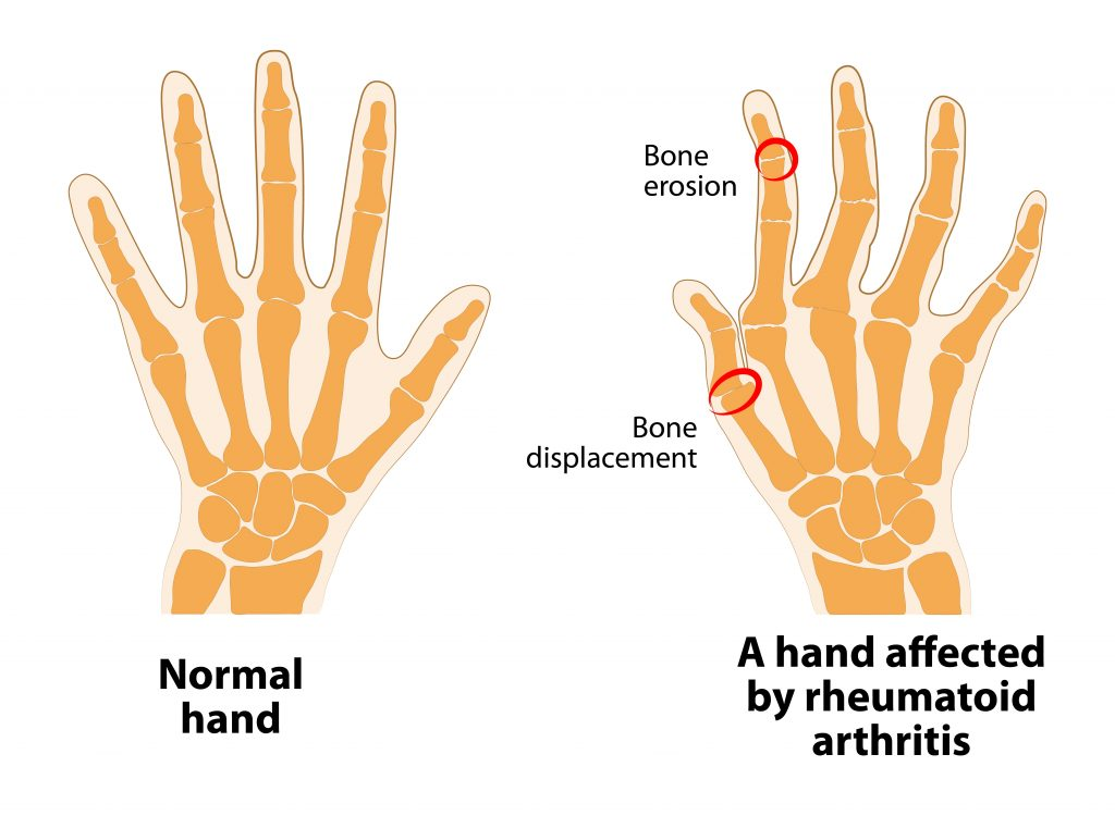 alleviate-arthritis