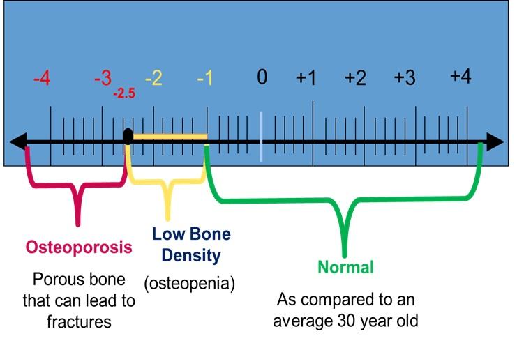 calcium-graph
