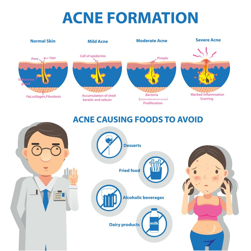 infographic-of-acne-formation-and-which-food-to-avoid