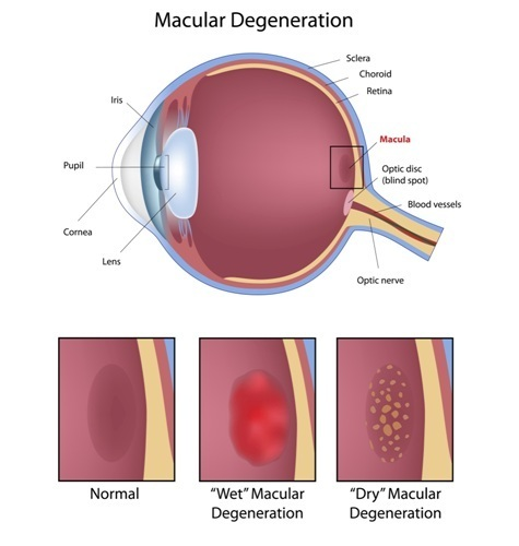 treat-macular-eye-disease