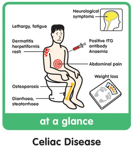Celiac Disease at a glance