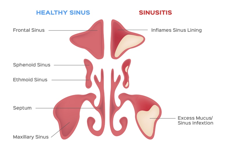 Health Sinus vs Sinusitis - Infographic