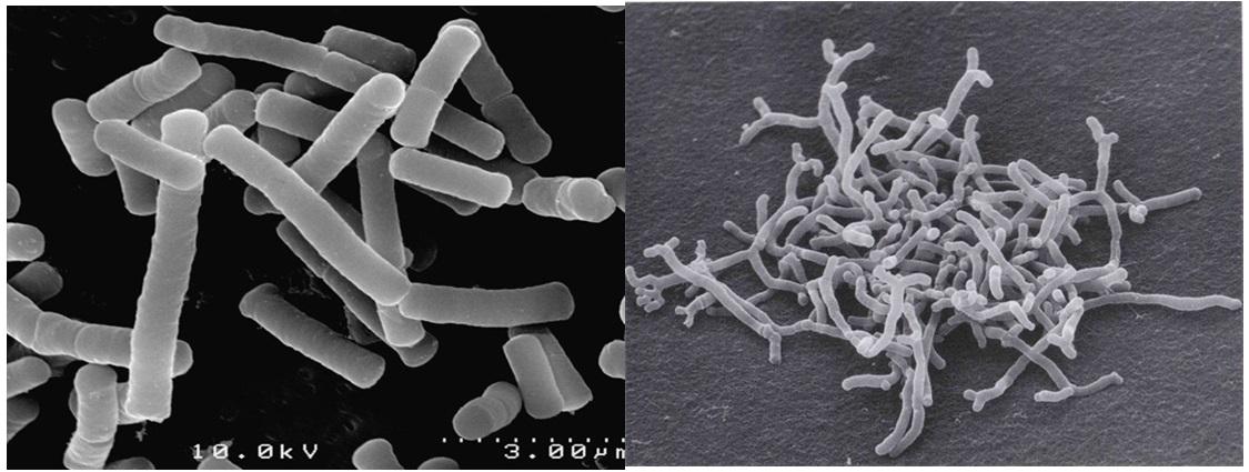 Image of Lactobacillus (left) and Bifidobacterium (right)