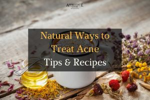 Wave Acne Good-Bye with These Natural Acne Treatments and Recipes