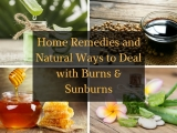 Home Remedies and Natural Ways to Deal with Burns (Including Sunburns)