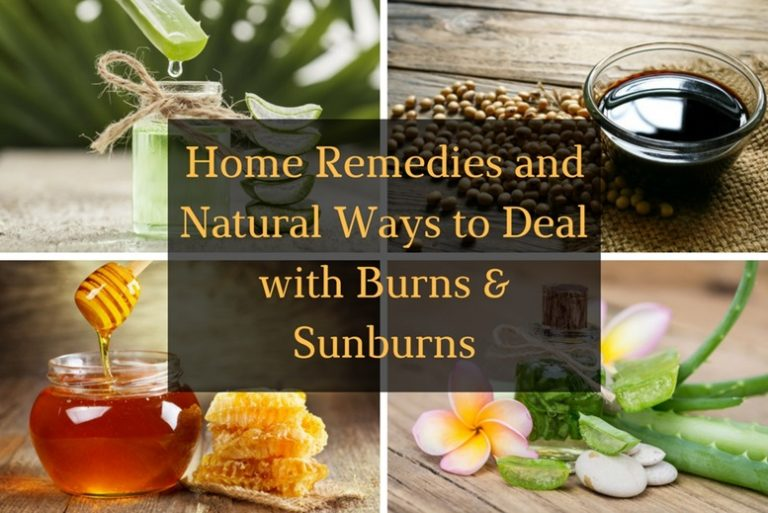Ways to deal with burns and sunburns article - Featured Image
